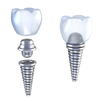 Dental-implant-diagram-being-attached-together