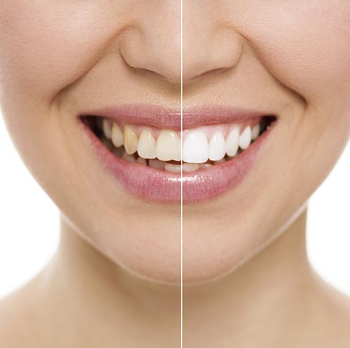 Teeth Whitening Near Me   Zoom Teeth Whitening Houston TX - Edge Dental