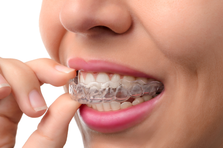 Dental Mouth Guard Houston   Mouth Guard for Night-time Teeth Grinding